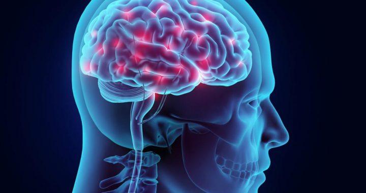 Epilessia – 5 miti da sfatare